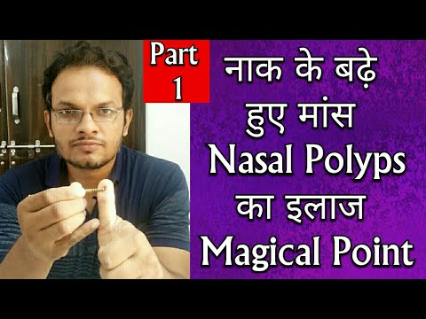 Nasal Polyps Home Treatment In Hindi | Flisol Home