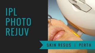 IPL Skin Rejuvenation and LED Light Therapy