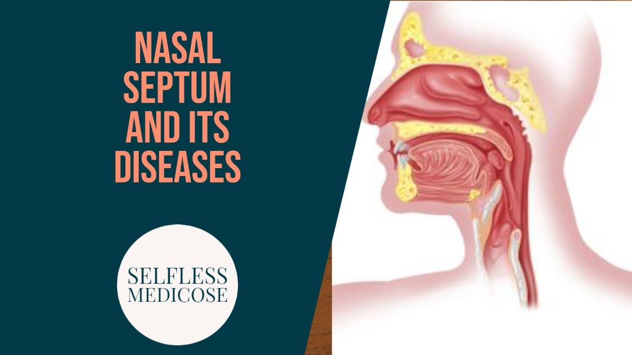 NASAL SEPTUM and DISEASES part 1, SEPTUM ANATOMY and ...
