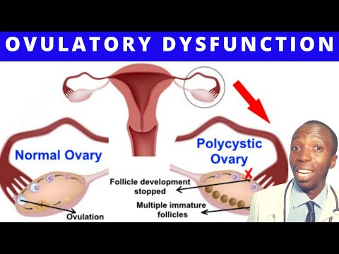 ANOVULATION AND OVULATORY DYSFUNCTION   Symptoms OF Anovulation OVULATION CALENDER   PREGNANCY TIPS