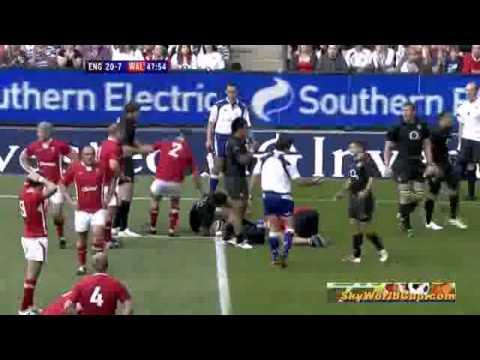 Morgan Stoddart's injury against England