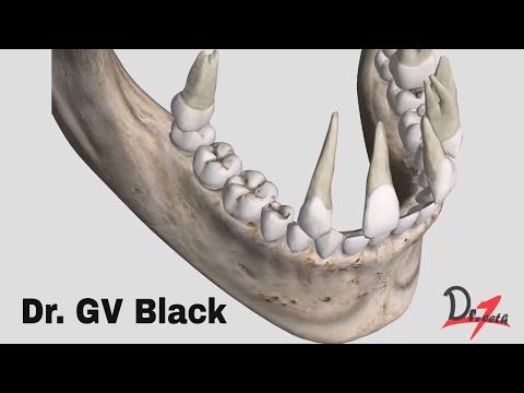 GV Black classification