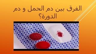 الفرق بين دم الحمل و دم الدورة؟. ثقف نفسك