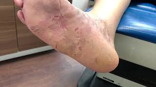 Liz Atkin has a compulsive skin picking disorder. She tells her story, and encourages the world to s.