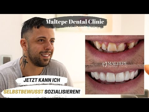 Smile Confidently with Zirconium Crowns | Maltepe Dental Clinic, Istanbul / Turkey
