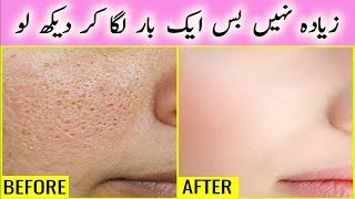 How To Close Large Open Pores Permanently - Get Rid Of Open Pores Naturally - Skin Care Tips 2018