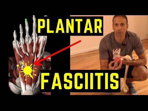 plantar-fasciitis-foot-pain-exercises