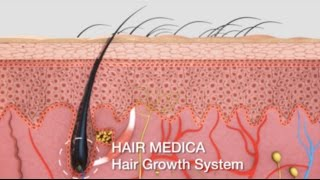 HAIR MEDICA - Hair Growth Solution Video