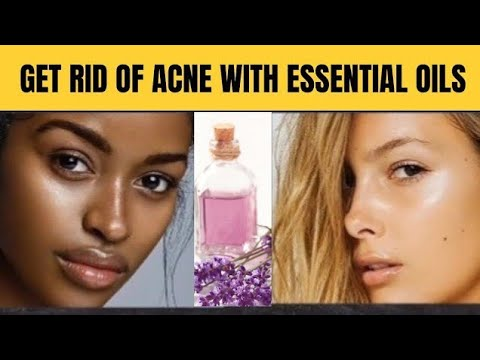 Get Rid of Acne With Essential oils   Health is Wealth