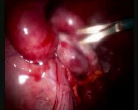Adhesions and the female organs - YouTube