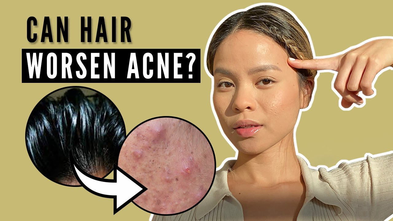 Correlation Between Hair and Acne