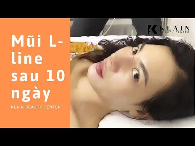 Nâng mũi L-line ĐẸP NHƯ TÂY sau 10 ngày tại Klain Beauty Center