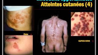 INFECTIOLOGIE INFECTION VIH 2015