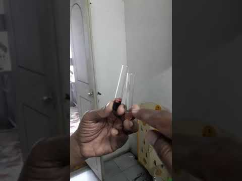 PRP ( Platelet Rich Plasma ) - How I am preparing - Dr. N. Murali Chand