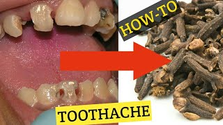 HOW TO USE CLOVES FOR TOOTHACHE | HOME REMEDIES FOR TOOTHACHE | NATURAL REMEDIES FOR TOOTH PAIN