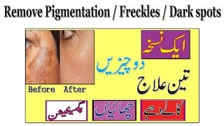 How Remove Pigmentation Freckles And Acne Scars Instantly