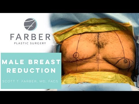 Male Breast Reduction Surgery (Gynecomastia) By Scott T. Farber, MD FACS