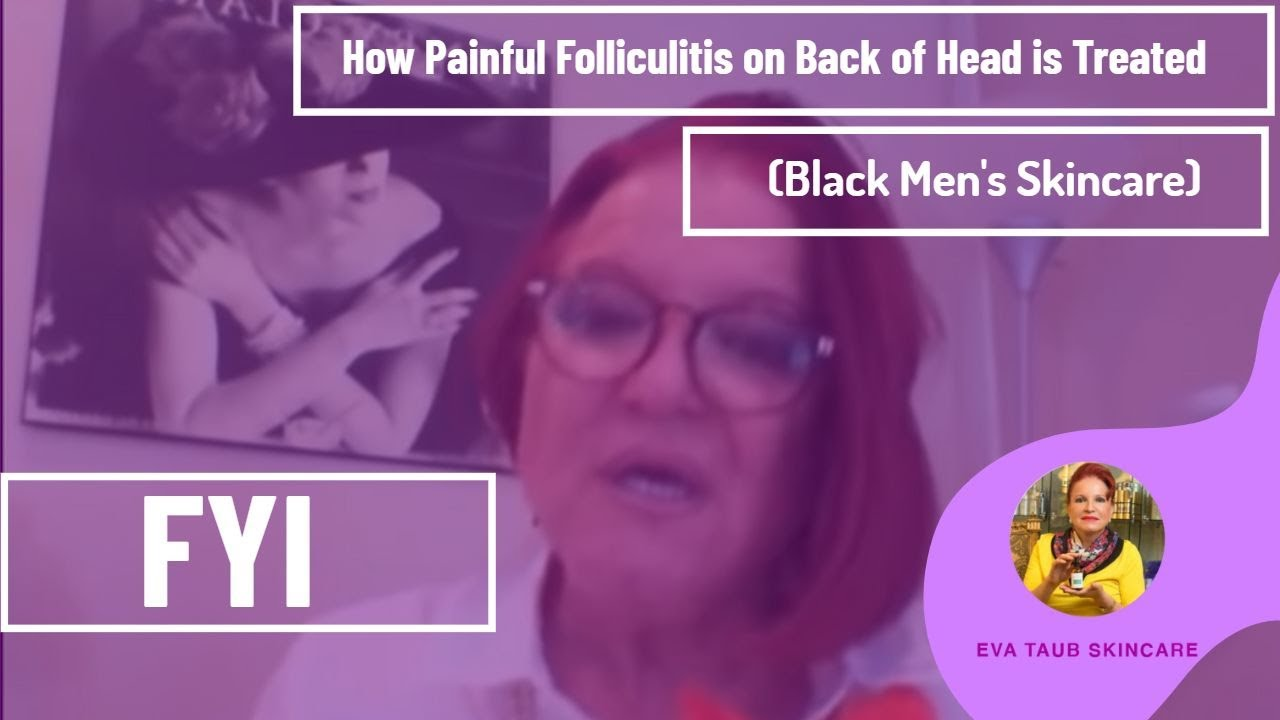 how painful folliculitis on back of head is treated black men s