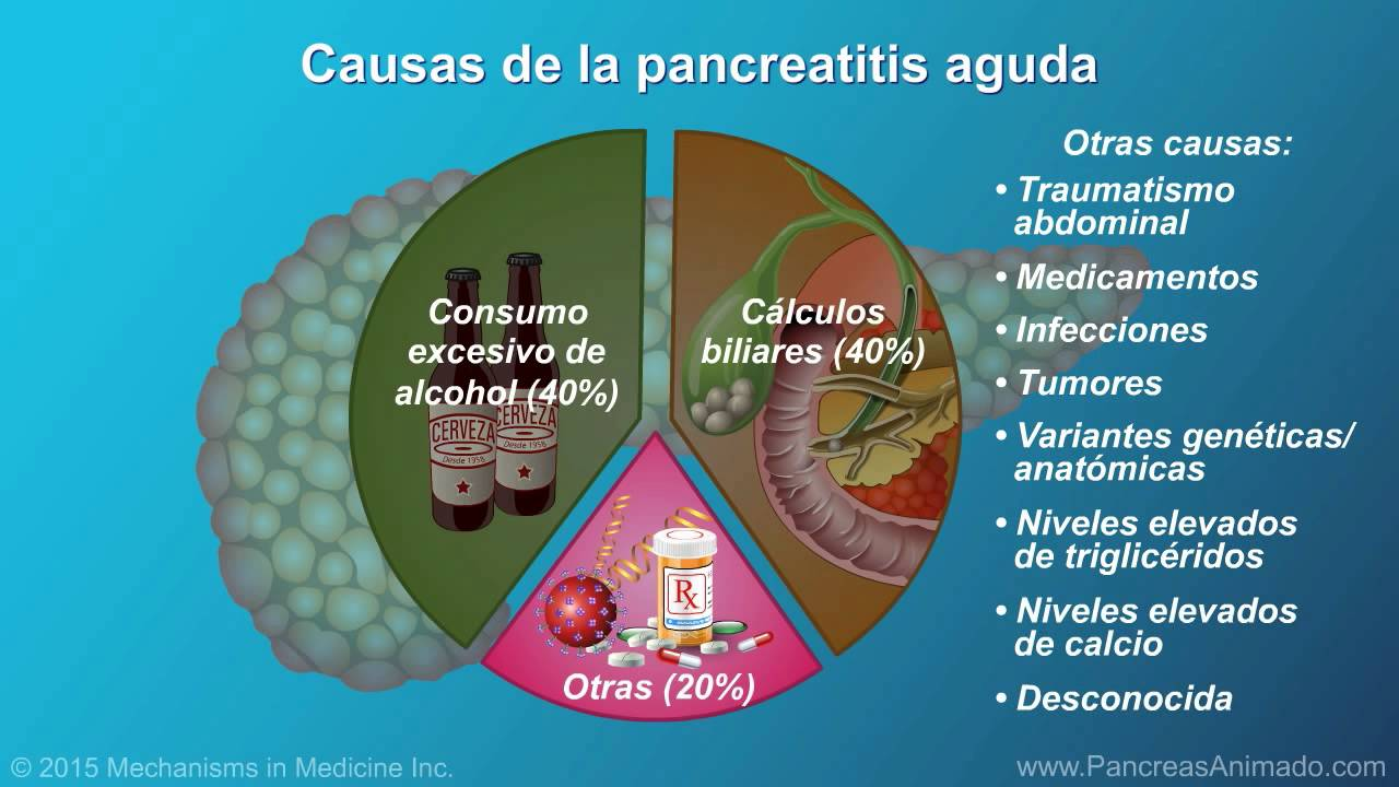 Pancreatitis aguda - YouTube