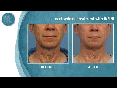 Skin tightening with micro needling radio frequency INFINI