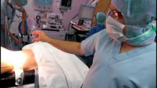 Implantation d'un neuro-stimulateur