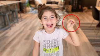 PENELOPE LOOSES TWO TEETH IN ONE DAY! (CUTEST REACTION EVER!)