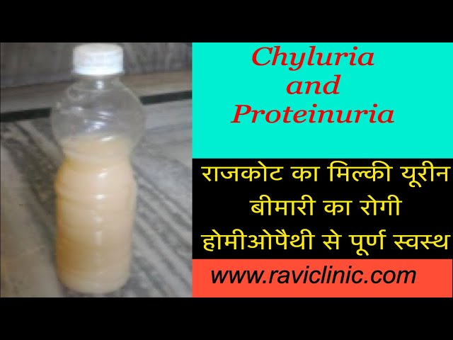 Chyluria, Proteinuria and Weight Loss Case cured by Homeopathy