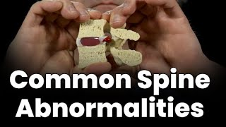 Common Spine Abnormalities (That Cause Back Pain)