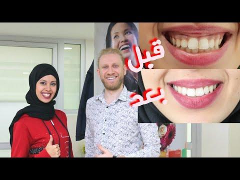 عملية تجميل أسناني في أشهر مركز في إسطنبول😁❤/عملية تصحيح اللثة/التبييض/بالأثمنة و التفاصيل❤