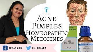 मुँहासे के कारन व बेस्ट होम्योपैथिक दवाई || ACNE PIMPLES Best Homeopathic Medicines