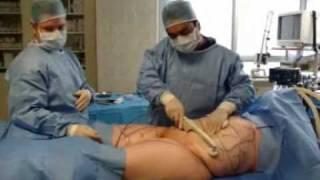 Demonstrating BodyTite Liposuction with Dr Ayham Al-Ayoubi thumbnail