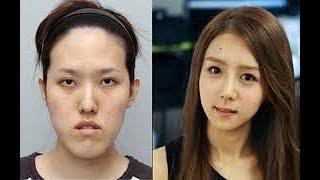 中国女子赴韩整容变化大离境遭拒?韩国法务部官方回应