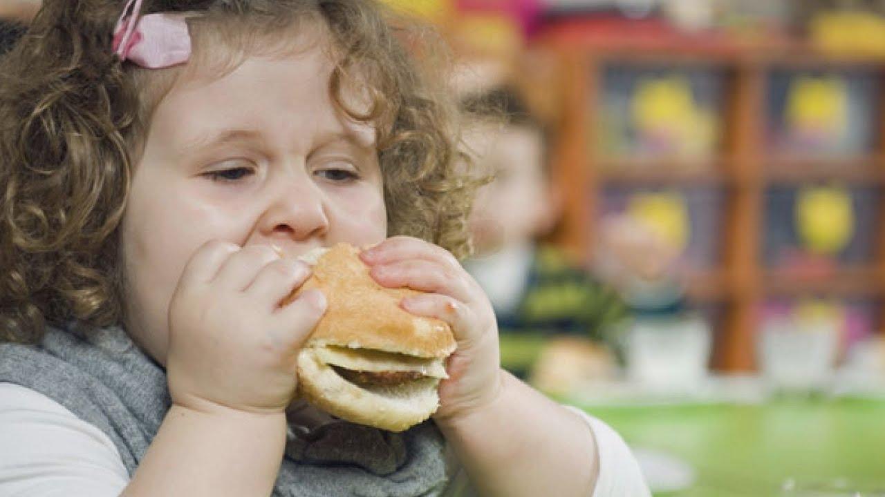 Gyermekkori elhízás (obesitas) étrendi kezelése