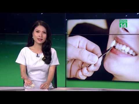 Mua răng trên mạng – trào lưu làm đẹp nguy hiểm của giới trẻ | VTC14