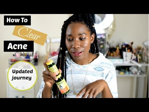 How to Clear Acne with Vitamins│Living With Shea