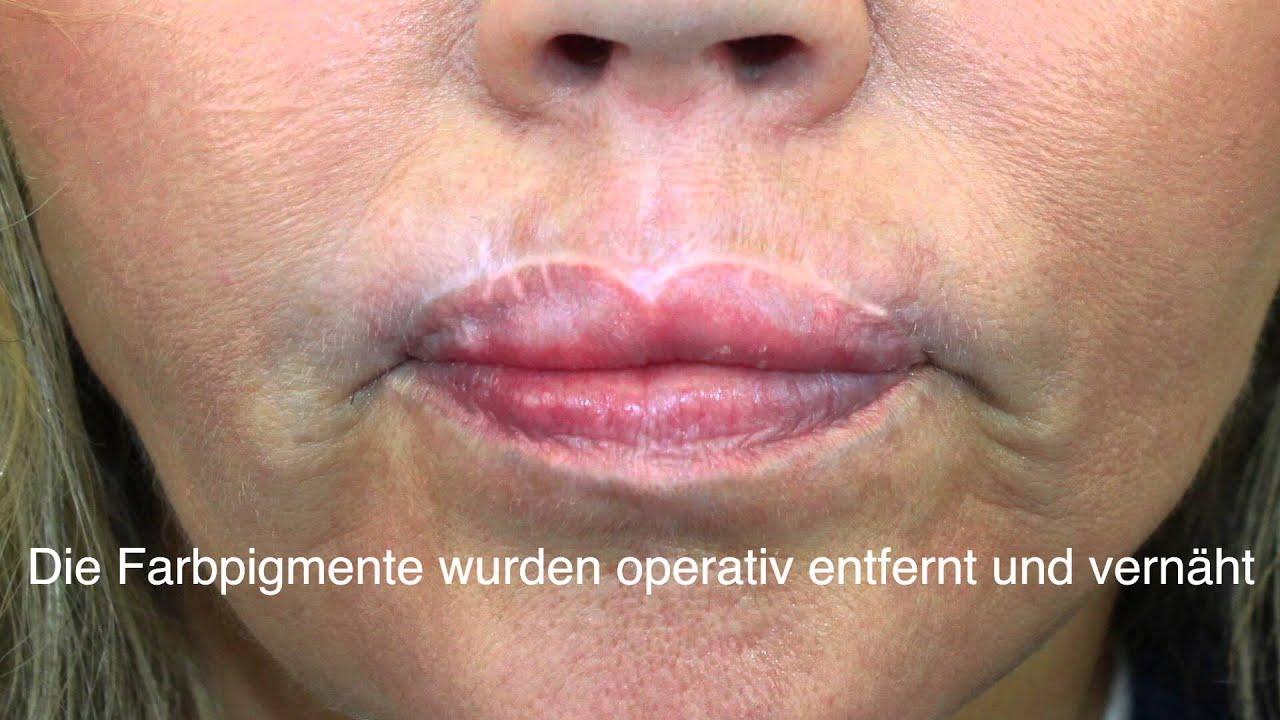 Lippenkorrektur Nach Einer Permanent Make Up Verpfuschung Youtube