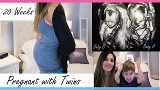 TWINS PREGNANCY 20 WEEKS UPDATE | Back Pain| Varicose Veins| Itzy Ritzy Diaper bag