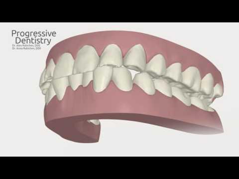 Progressive Dentistry - Invisalign Corrective Procedure Example - Gennady