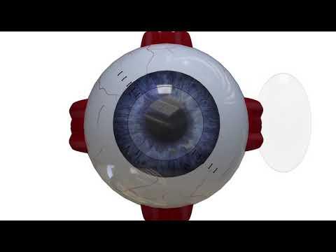 Анимация в 3д, хирургическая операция глаза 2