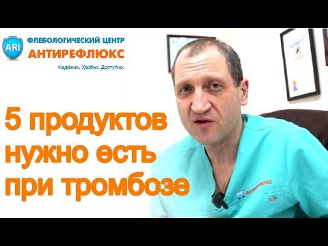 Диета при тромбофлебите - ТОП 5 продуктов