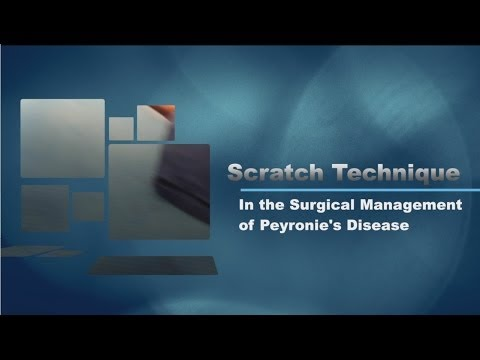 The 'Scratch' Technique to Treat Peyronie's Disease