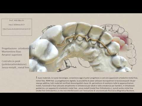 retainer fisso in peek , ortodonzia senza metalli