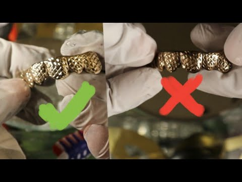 How to clean your gold  grillz teeth  totally dirty