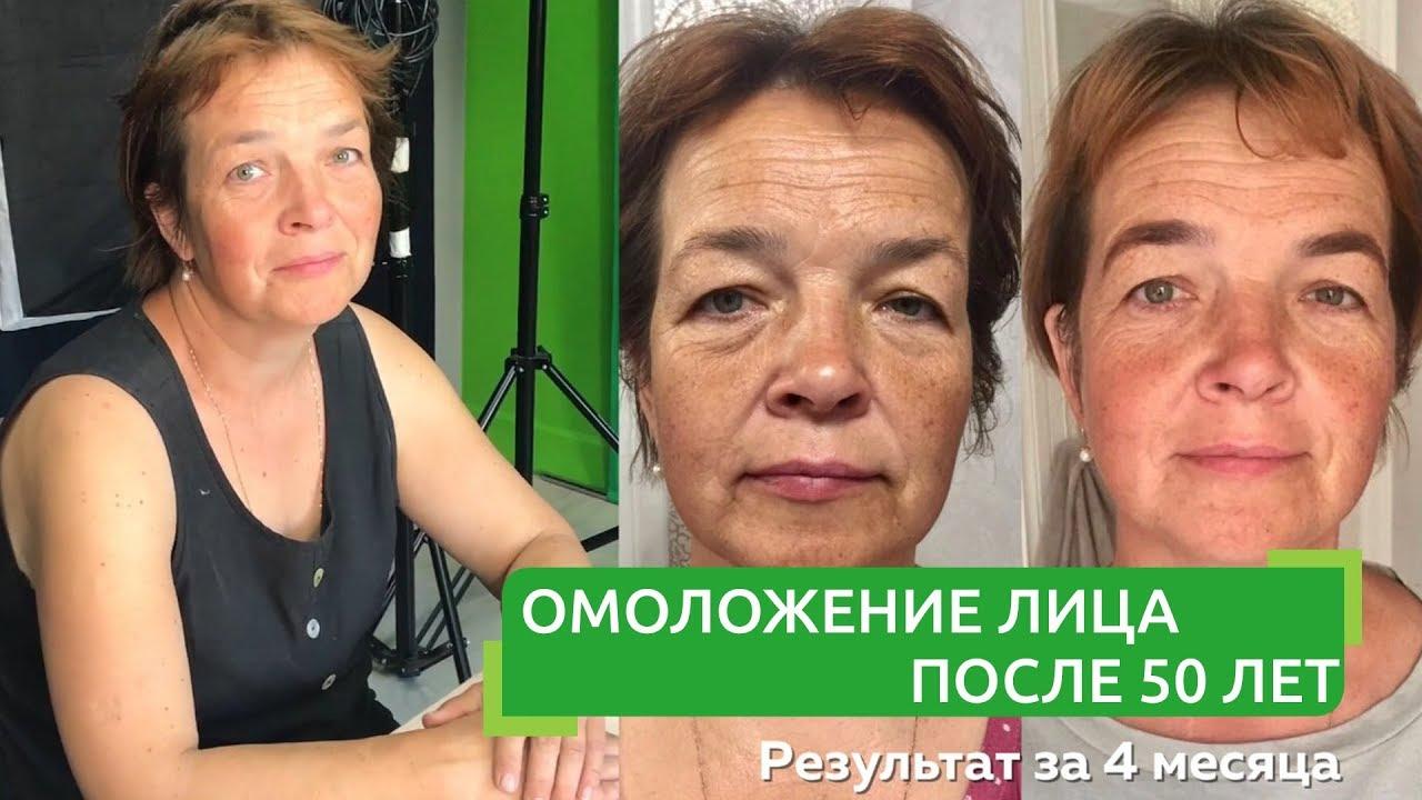Омоложение лица после 50 лет | Фейсфитнес с Ольгой Малаховой | Фейс фитнес до и после, отзывы