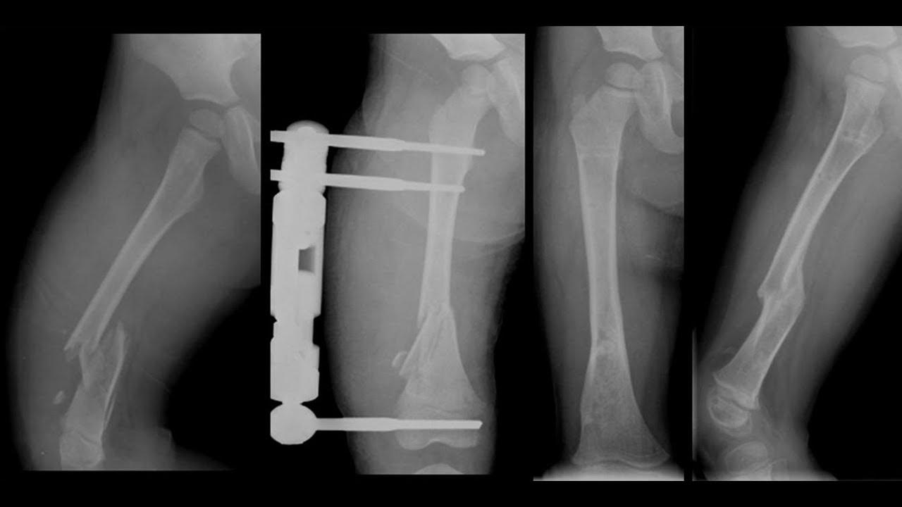 sintomas y signos de fractura de femur