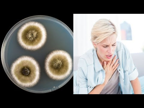 the 11 most commons symptoms of mold illness.. and A Great Natural Treatment for Mold Allergy