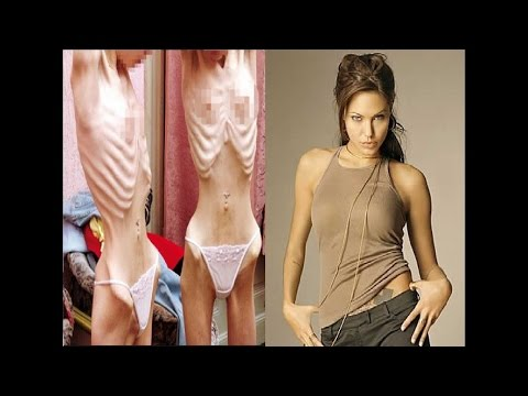 Slowly dying! Angelina Jolie starves