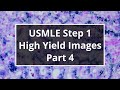USMLE Step 1 High Yield Images (Part 4)
