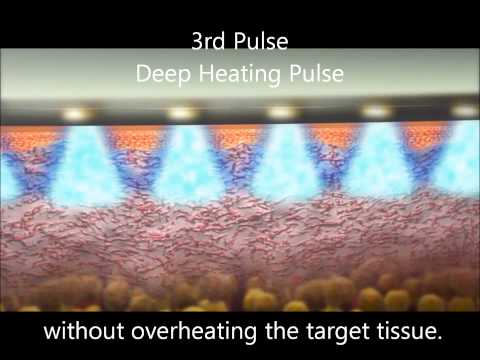 TriFractional anti-aging RF technology animation