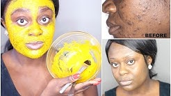 hqdefault - Turmeric Face Mask For Acne